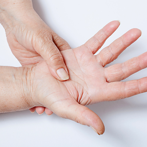 Raynaud's syndrome - Symptoms